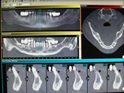 Virtual Implant Placement Software