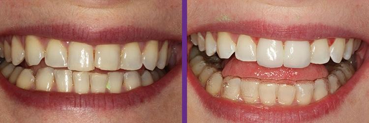dental-implant-testimonial