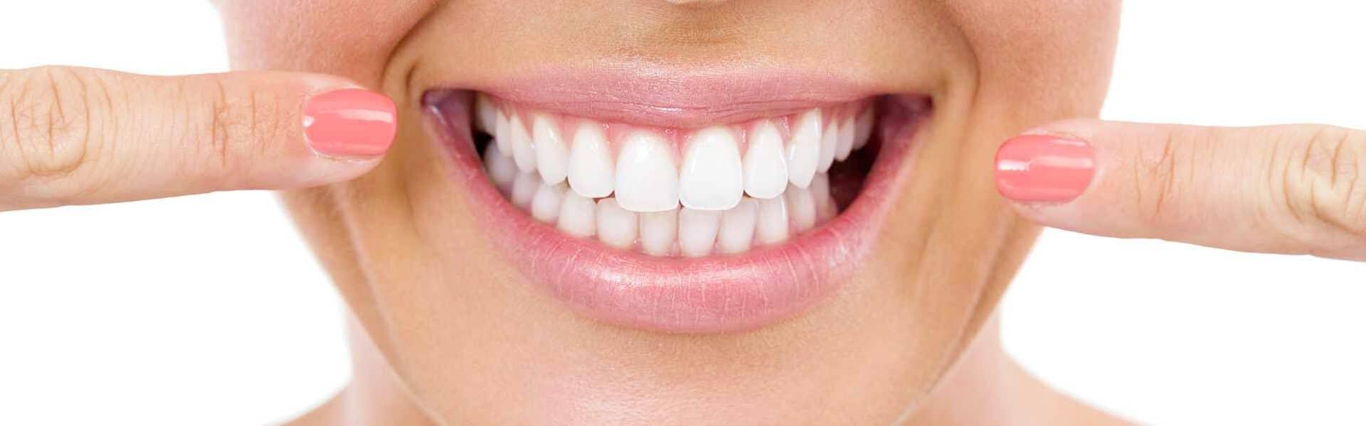 Tewksbury Teeth Whitening: What Type Is Best for You?